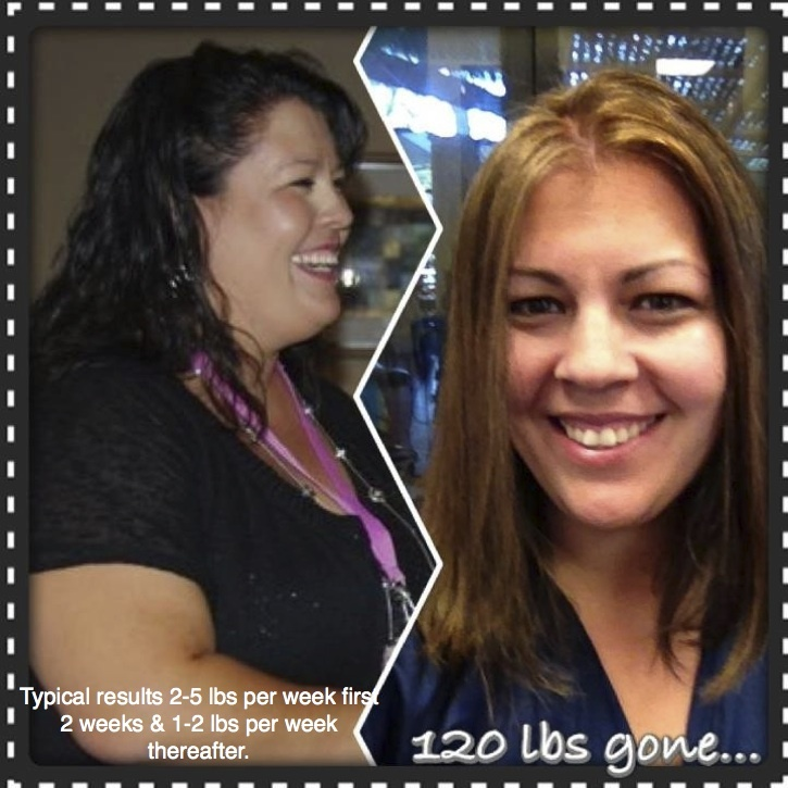Day 9: Rachelle is down 120 lbs now! So proud of this girl & excited for what her future holds. I love that, for her, the healthy mind & emotions are even more important than the pounds lost. She has gained more than she will ever lose!