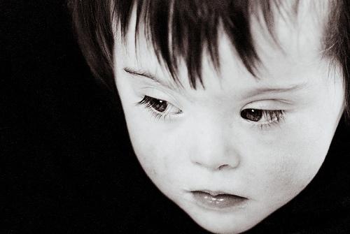 (Precious) Down's Syndrome