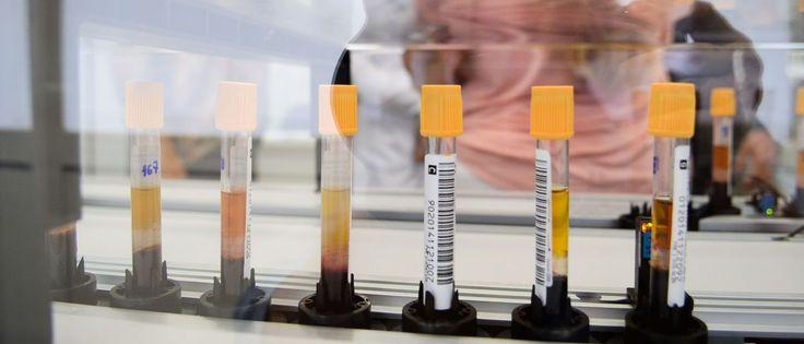 InfoNavWeb                       Informação, Notícias,Videos, Diversão, Games e Tecnologia.  : 'Doença da urina preta' foi causada pela ingestão ...