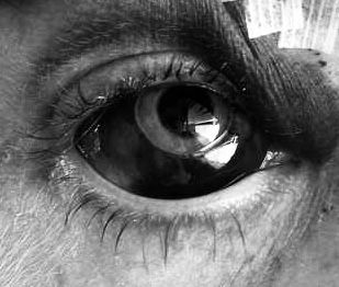 Bloodshot work accident  Eyeball