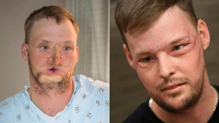 Doctors around world have helped people make stunning transformations.