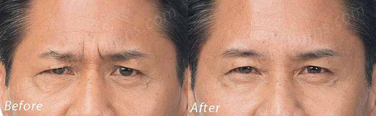 https://flic.kr/p/DEmxDW | Botox Cosmetic | Botox Cosmetic Dr. John L. Burns, Jr., MD Board Certified Plastic Surgeon President, Dallas Plastic Surgery Institute