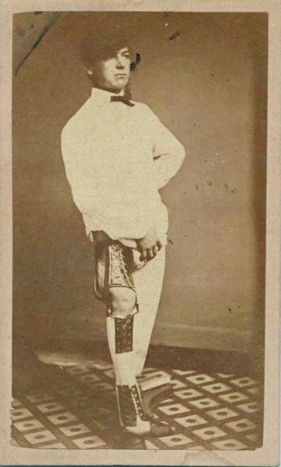 c. 1861-72, [portrait of a gentleman exhibiting an injured leg in brace with arched foot resting on an artificial foot], U.S. Sanitary Commission    via the New York Public Library, Civil War Medical Care: Photographs and Drawings from the United States Sanitary Commission Collection