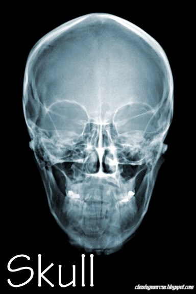 human body: printable x-ray cards