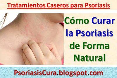 Las pieles de plátano para la psoriasis