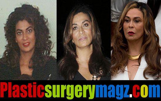 361 best images about plastic surgery on pinterest derek