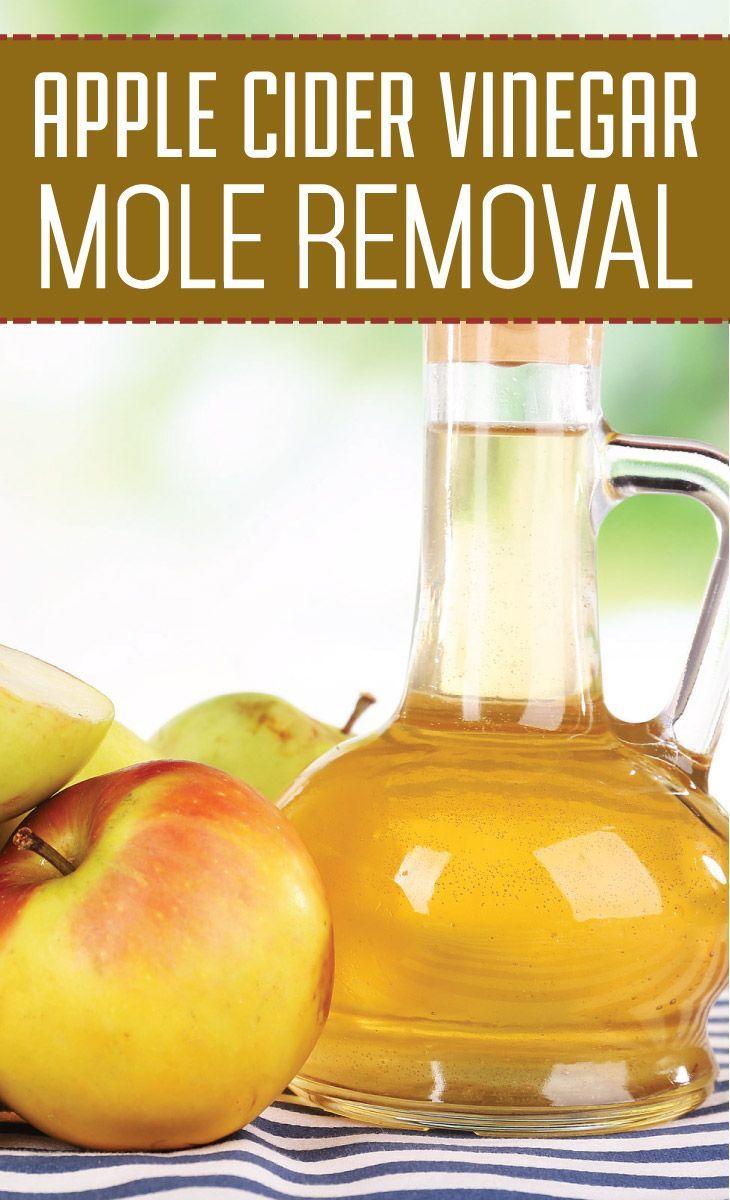 Yard moles and vinegar and castor oil - Apple Cider Vinegar Mole Removal