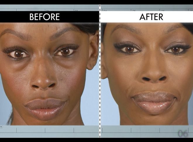Puffy Eyes from Botched Patients Before and After—Shocking Transformations!  Myesha's before and after of the puffiness under her eyes is unreal! Dr. Nassif made a dramatic change and boosted her confidence.