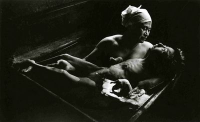 Re Peste: Top Photos: Eugene Smith - Tomoko Uemura In Her Bath (1971)  Not all photographs are easy to see. Illustrates the terrible effects of mercury poisoning.  Profoundly touching.  Considered one of Smith's best works.