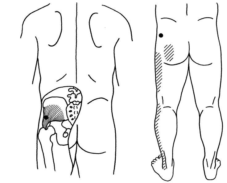 Ischias, Piriformis Syndroom, Beklemming van de nervus ischiadicus, Erectie stoornissen, Tintelingen in de benen, Pijn in bil, anus, rectum,...