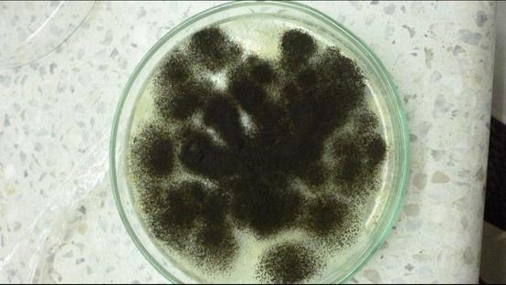 Aspergillus niger and Agar on Pinterest