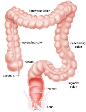 relationship between appendicitis and colon cancer