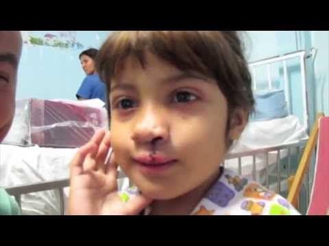 Thalita sorride anche grazie a voi - Operationsmile.it    Questa è la storia emozionante della piccola Thalita, che adesso sorride anche grazie a voi, ma ci sono tanti altri #bambini nel mondo che aspettano con ansia di poter sorridere.  Aiutali anche con una piccola donazione ad Operation Smile Italia www.operationsmile.it #donaunsorriso
