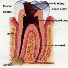 Home Remedies For Tooth Infection - Natural Treatments & Cure For Tooth Infection | Find Home Remedy                                                                                                                                                     More