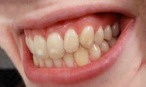 Fluoroza dentara – STOMATOLOGIE