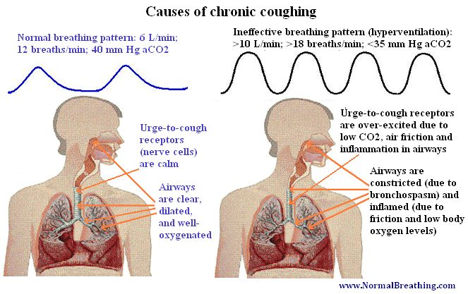 how to stop coughing naturally