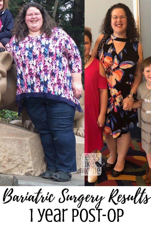 1 year post gastric sleeve diet