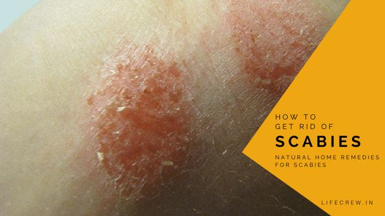 How to Get Rid of Scabies, Cure Scabies at Home Fast, Treatment for Scabies, What is Scabies, Natural Home Remedies for Scabies