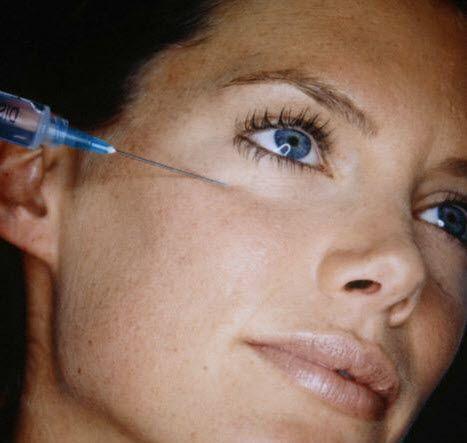 girl getting under eye dermal fillers