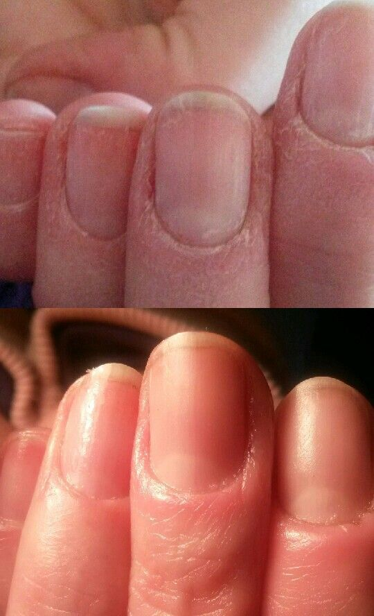 Ibx treatment on pelling nails no buffing at all ♥