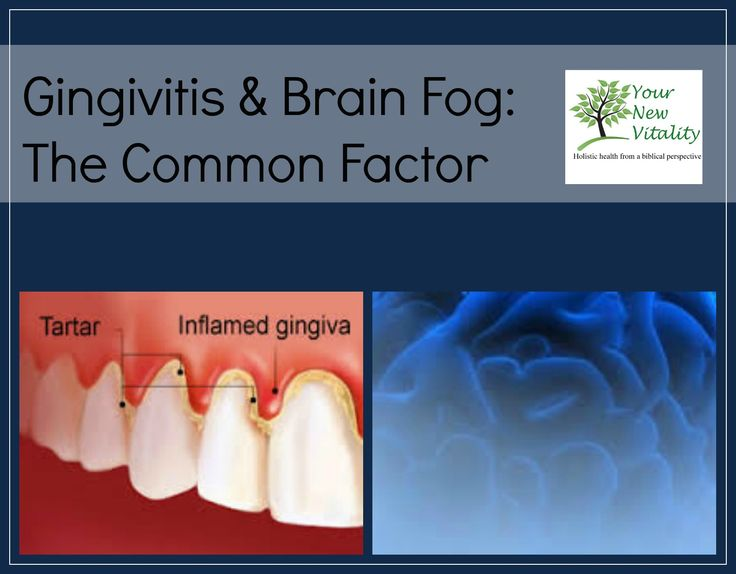 Gingivitis & Brain Fog: The Common Factor-- Intense brain and nervous system activity in the form of stress, intense thought, study, etc. utilizes nutrients that maintain nerve cell function so fast that the supply of needed chemical substances... READ MORE HERE: http://yournewvitality.com/easyblog/entry/gingivitis-brain-fog-the-common-factor