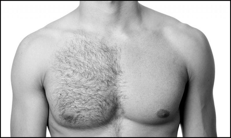 chest-hair-removal-for-men.gif (800×479)