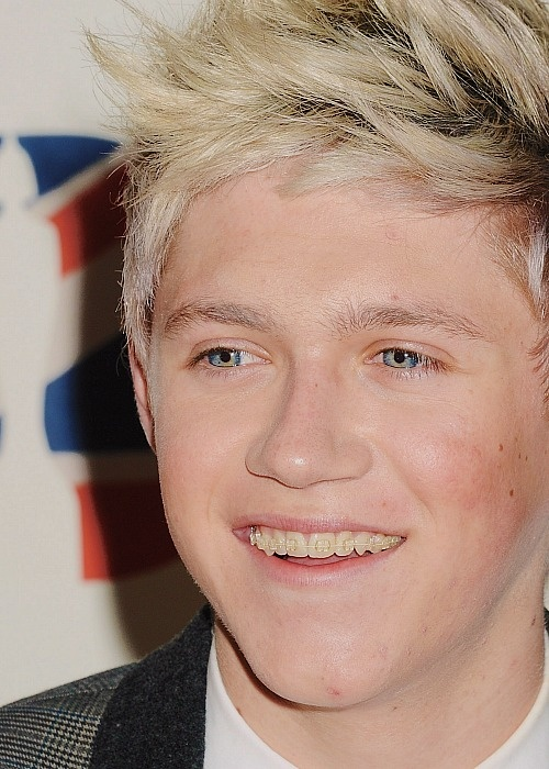 Clear Braces Niall Horan