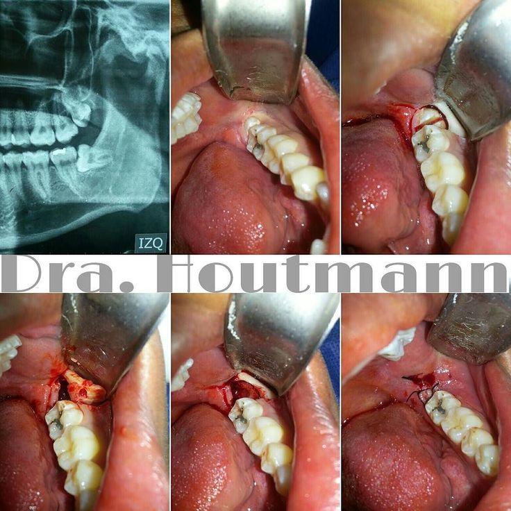 Wisdom tooth  #CBMF #CirugiaMaxilofacial #CirugiaBucal #CirugiaOral #OralSurgery #love #science #Repost #lifestyle #Popular #PicOfTheDay #follow #dentistry #odontologia #usa #brasil #anatomy #health #passion #beautiful #like #top #doubletap #venezuela #monday #WisdomTooth #Cordales #TercerosMolares #estudiantesdeodontologia #extraccion by jannamaxilo Our Oral Surgery Page: http://www.myimagedental.com/services/oral-surgery/ Google My Business…