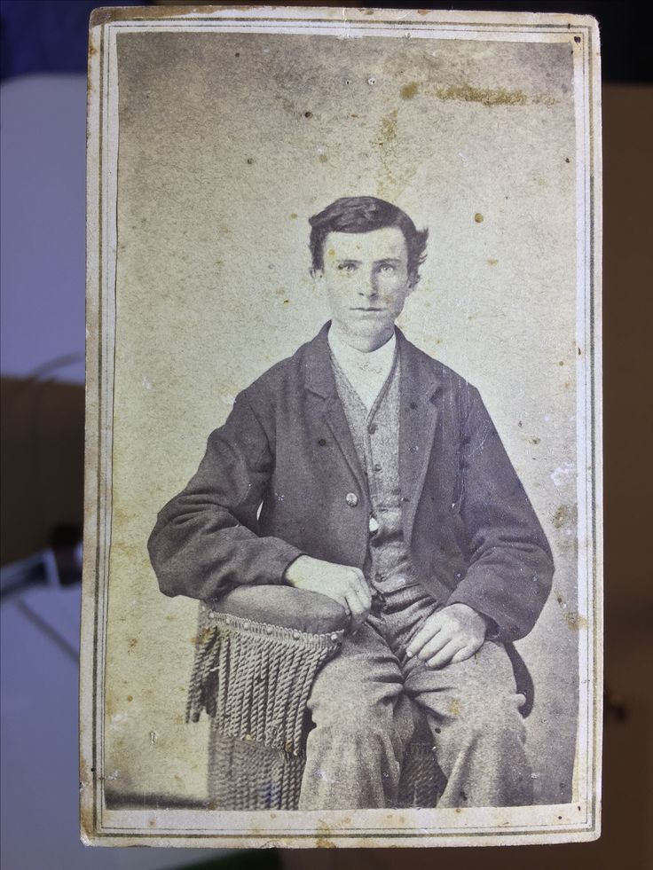 Jesse James About 14 or 15. Notice the missing joint on his left middle finger. Carte de visite