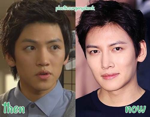 Ji Chang Wook Plastic Surgery before and after