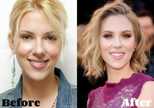 #Breast #Johansson #Plastic #reduction #Scarlett #…
