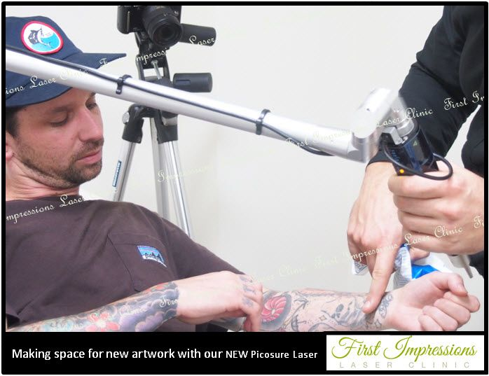 Making space for new artwork - this tattoo artist has popped in to use PicoSure laser at First Impressions laser clinic which removes tattoos in half the treatment with no scarring meaning he can be adding to his artwork in only one or two sessions.