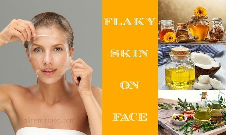 How to treat flaky skin on face? Here are 18 effective solutions to help you treat flaky skin on face.