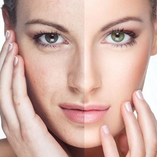 Visit our site http://minifaceliftguide.net/ for more information on Mini Face Lift.In Mini Face Lift procedure, the surgeon separates the skin from the tissue under it. While the skin is lifted, the muscles and tissue under the skin are tightened. This lift is fairly quick and the recovery is equally quick, with patients returning to work and regular activities within a couple of days.