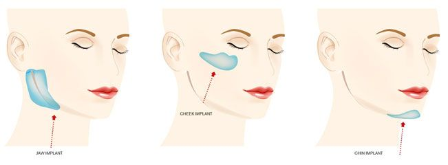 Facial implants are typically used by plastic surgeons to balance facial contours of the patient to improve their appearance. Several types of facial implants are available in many different materials, with the jaw-line, chin & cheekbones being the most common areas treated.Take advantage of our free consultation - schedule now toll free 855-632-2847!