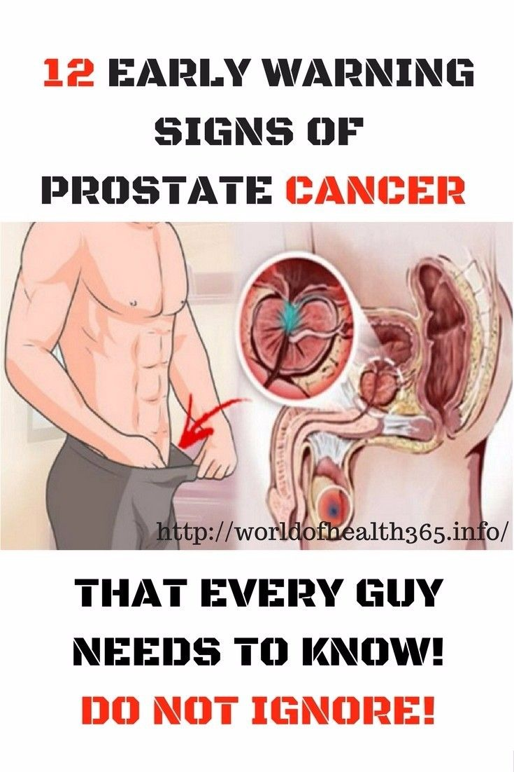 How to Cure Prostate Cancer images