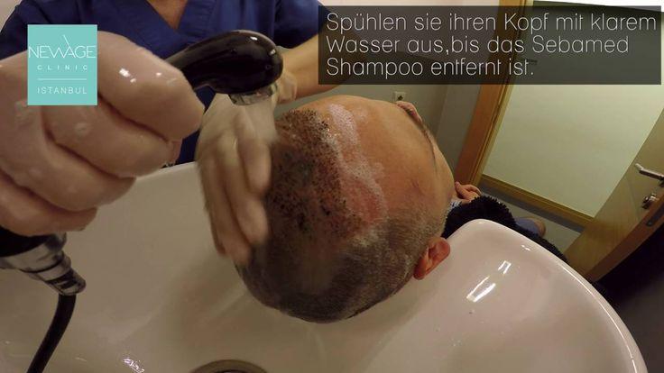 Lotion Anwendung vor der waschung  #Haartransplantation #Haarverlust #Alopezie #Haarausfall #DiebestenHaartransplantation #Ästhetik #plastischeChirurgie #fuehaartransplantation #fueHaartransplantationen #Haartransplantationen