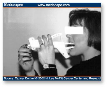 Dysphagia in adenocarcinoma