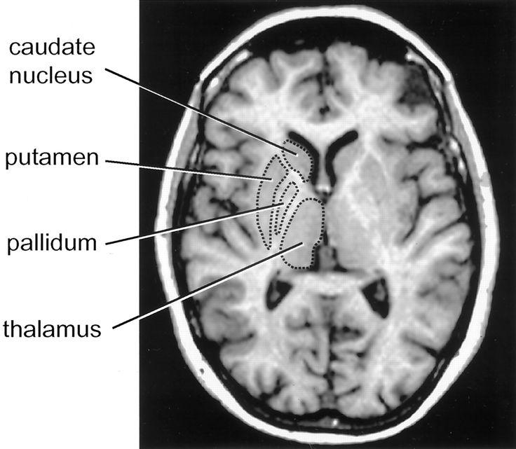 11 Best Temporal Lobe Epilepsy Images On Pinterest Temporal Lobe