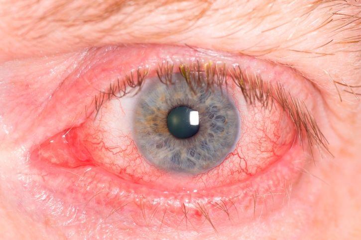 Remedios caseros para eliminar los ojos rojos