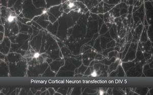 Primary Cortical Neuron transfection on DIV 5  (Data Courtesy of Dr Elena Di Daniel, Principal Scientist, Takeda Pharmaceuticals, Cambridge, UK)