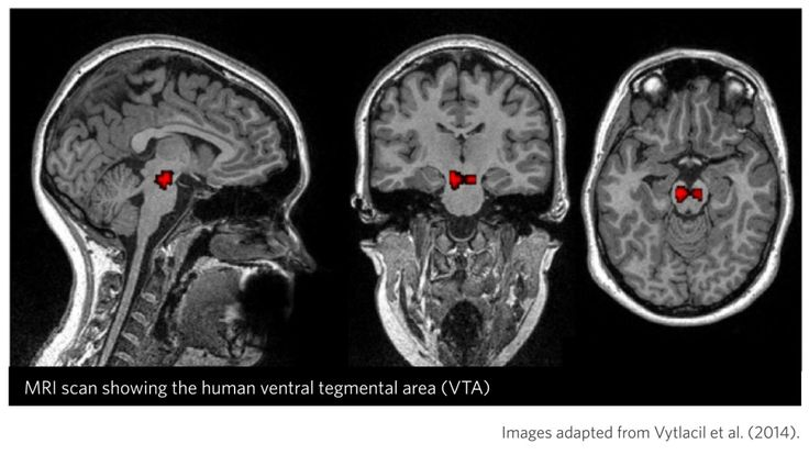 From Knowing Neurons blog. MRI scan showing in red the ventral tegmental area (VTA), a collection of cells that provide one of the main sources of dopamine.