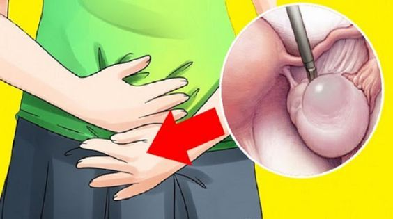 Σημάδια έγκαιρης προειδοποίησης των κύστεων των ωοθηκών που οι περισσότερες γυναίκες αγνοείτε και τι να κάνετε όταν τα αντιληφθείτε..Οι κύστες στην ωοθήκη..