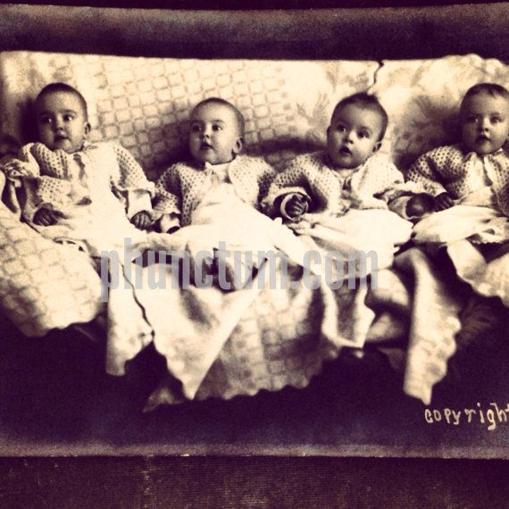 genain quadruplets - photo #7