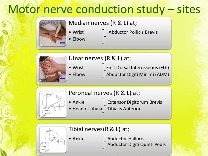Motor nerve conduction study – sites           Median nerves (R & L) at;           • Wrist             Abductor Pollicis B...