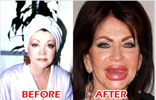Jackie Stallone | 22 Most Shocking Celebrity Before And After Plastic Surgery Shots