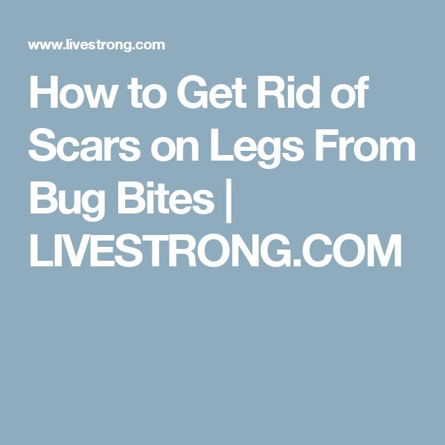 How to Get Rid of Scars on Legs From Bug Bites | LIVESTRONG.COM