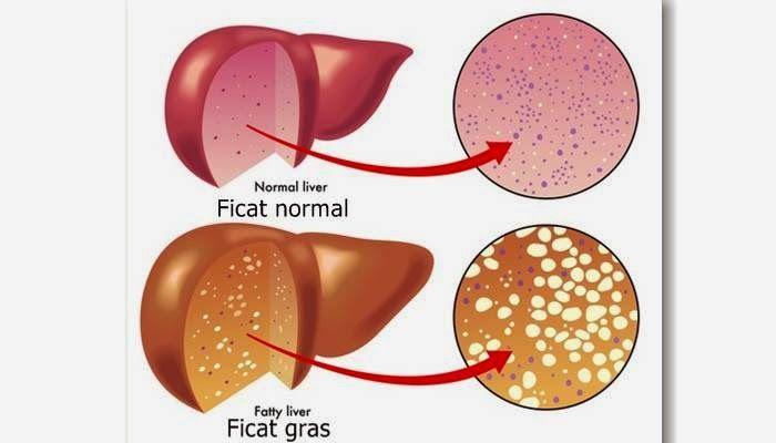 Secretele: Acestea sunt Simptomele unui Ficat Gras si Iata Aici cum se Vindeca