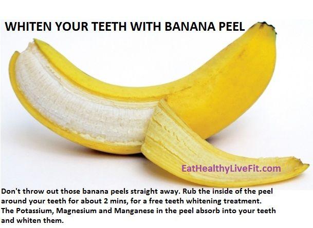 Teeth Whitening with banana peels!
