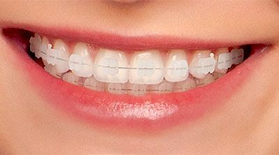 How can you improve your smile? Here is the solution i.e. #Orthodontics treatment. Read more about it at here >> http://goo.gl/jDHY97  #dentist #Melbourne #Australia